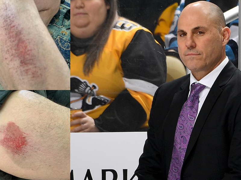 SHORT SHIFT - Tocchet takes tumble while roller skating
